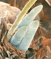 demodex2